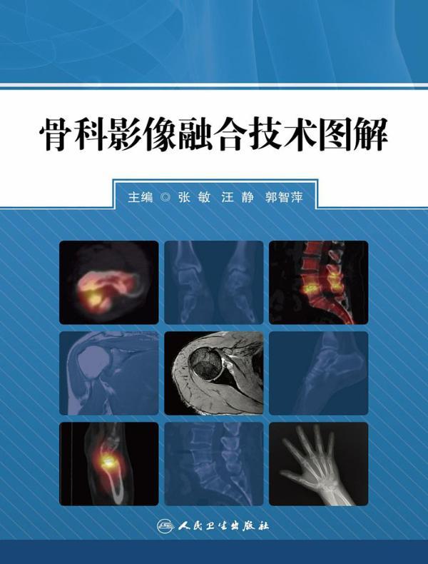 骨科影像融合技术图解
