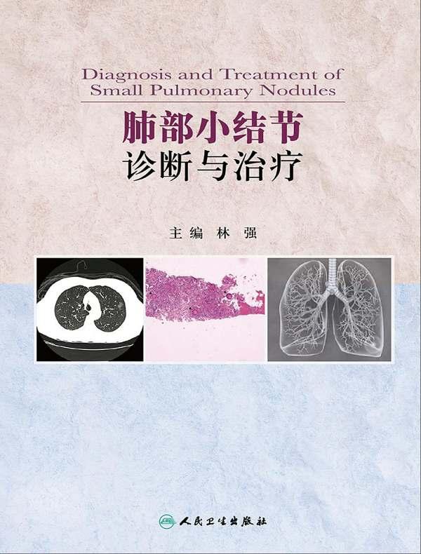 肺部小结节诊断与治疗