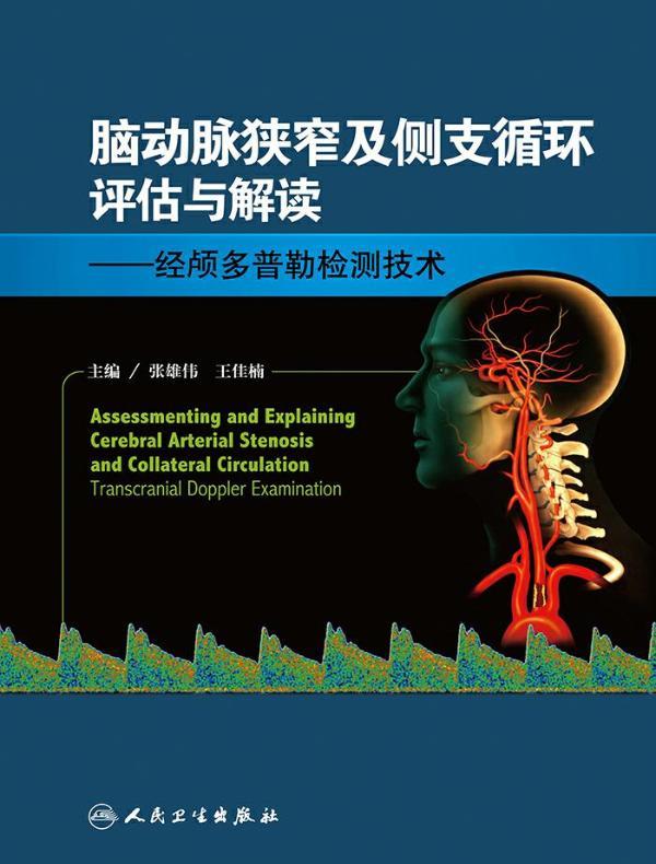 脑动脉狭窄及侧支循环评估与解读:经颅多普勒检测技术
