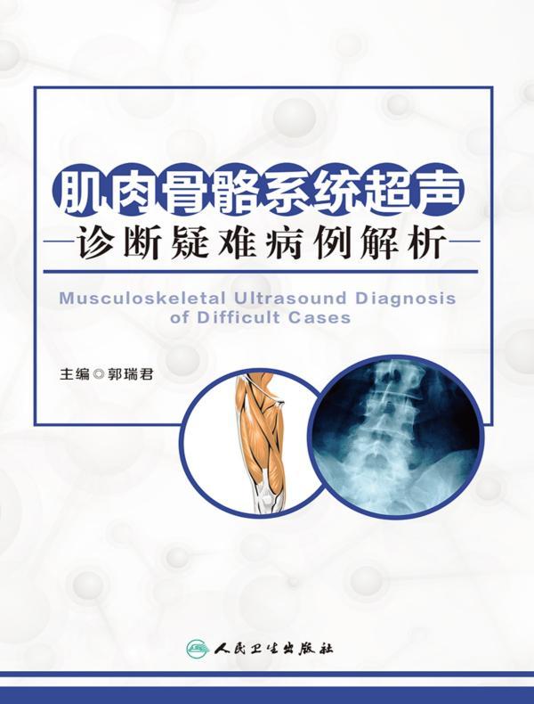 肌肉骨骼系统超声诊断疑难病例解析